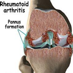 physical therapyarthritis images arthritis physical therapy rheumatoid arthritis