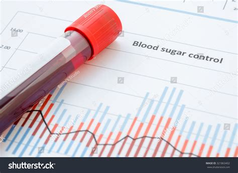 glucose test tube sle blood screening diabetic test blood stock photo