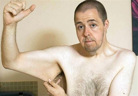 Out With The Excess Weight by Sagging Skin 9 Problems With Excess Skin Understand
