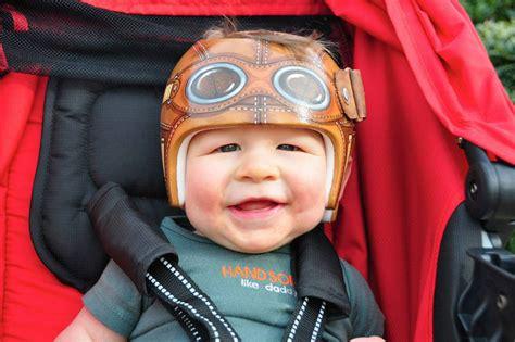 Cranio Helm Aufkleber by Artist Transforms Babies Head Shaping Helmets Into