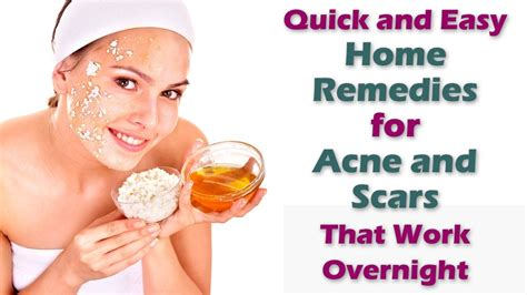 about best home remedy for acne health129