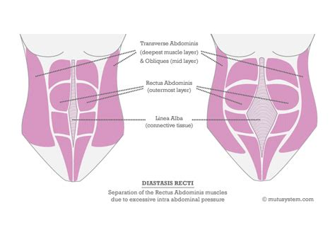 abdominal muscles diagram diastasis recti the muscles mutusystem