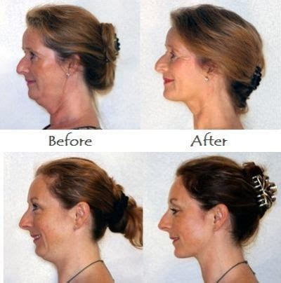 hairstyles for defined jawline double chin image short hairstyle 2013