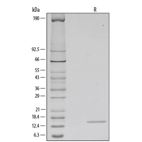 t protein csf recombinant human gm csf protein 215 gm 010 r d systems