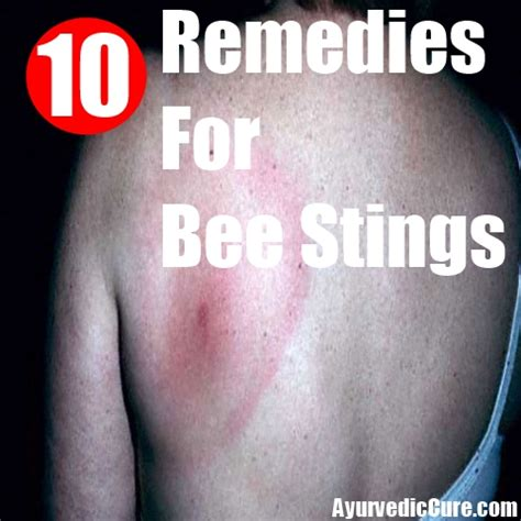 best home remedies for bee stings treatments