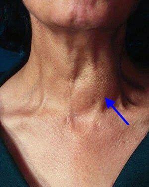 Obat Herbal Tumor Amandel cara mengobati tumor jinak di leher tumor jinak atau