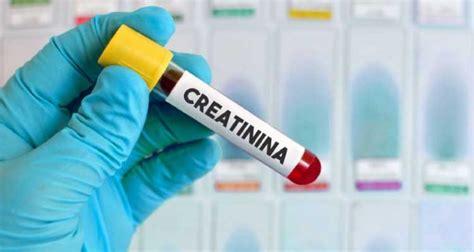 creatinina y creatinina creatinina e ureia avalia 231 227 o da 231 227 o renal 187 md sa 250 de