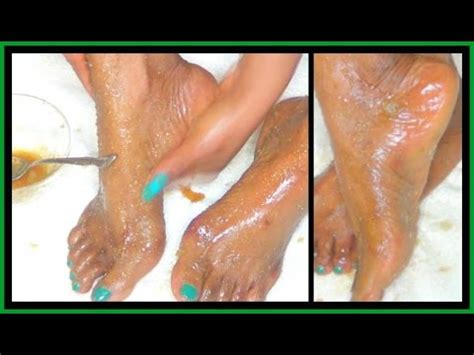 Why My Detox Foot Soak Didnt Work by Foot Treatment Callus Corn Remover How To Get Soft