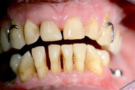 wann muss weisheitszahn raus parodontitis parodontose zahnlockerung durch