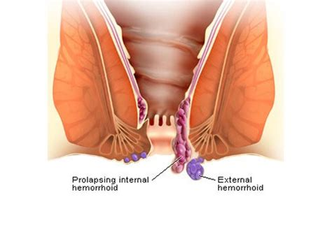 how long does swelling last after c section how to get rid of hemorrhoids causes and treatments
