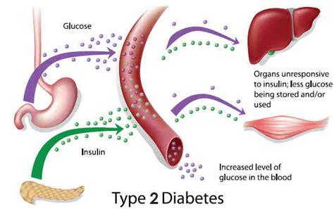 avoid andor reverse type  diabetes