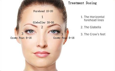 Botox Also Search For Botox Treatment Dosing Botox Lines Wrinkles