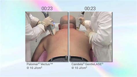 diode laser hair removal vs candela maxresdefault jpg