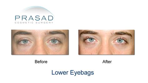 eye color surgery before and after lower eyelid surgery eyelifts by dr amiya prasad md facs