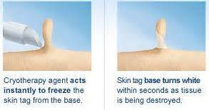 remove skin tags at home how to remove skin tags at home remedies naturally