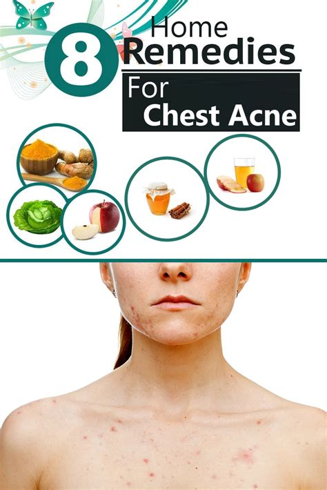 Effective Home Remedies For Acne by 8 Effective Home Remedies For Chest Acne Search Home Remedy