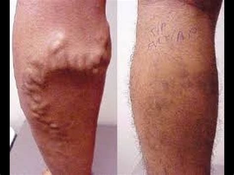 spider veins on the legs treatments treatment varicose veins legs