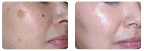 excel v laser for skin treatment melasma south korea