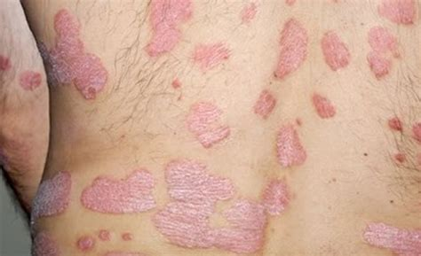 fungal skin infection candida skin infection yeast infection on skin