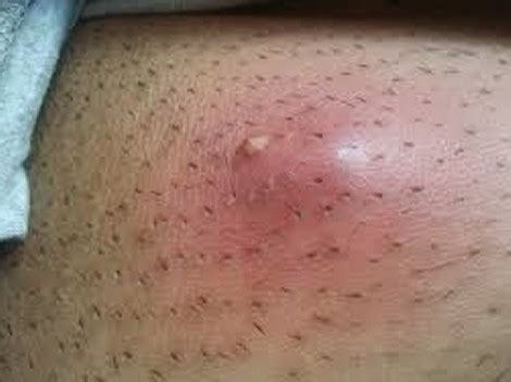 it looks like a simple ingrown hair deep ingrown hair cyst removal treatment pictures