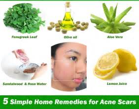 home acne treatment five simple and effective home remedies for acne scars