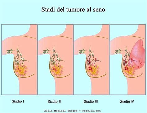 diversi tipi di vagine carcinoma alla mammella sintomi triplo negativo