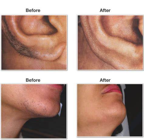 brazilian laser hair removal pictures average price for laser hair removal brazilian triple