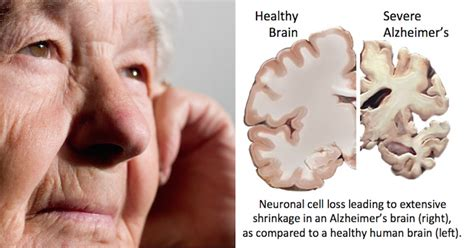 alzheimer s alzheimer s disease may be prevented when you know what