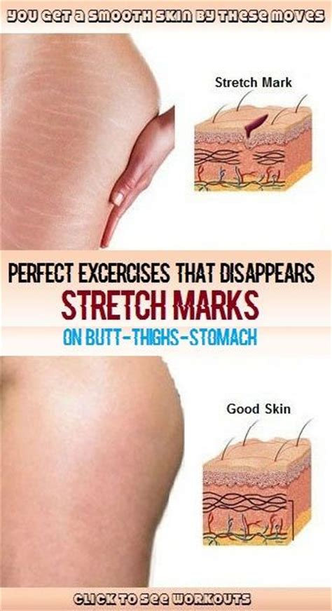 Miller Has Stretch Marks And Cellulite by Best 25 Stretch Marks On Thighs Ideas On Arm