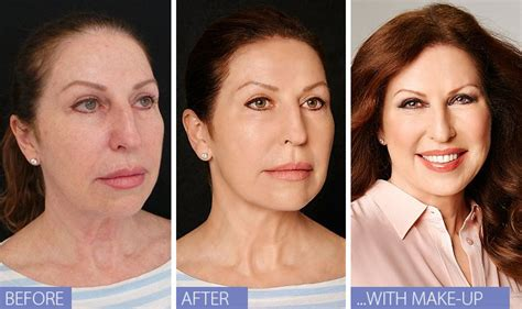 celebs who havent had neck lifts why should i feel guilty about my lunchtime facelift it s