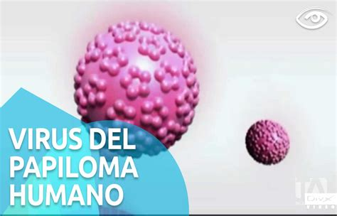 virus del papiloma humano vph fotos virus del papiloma humano