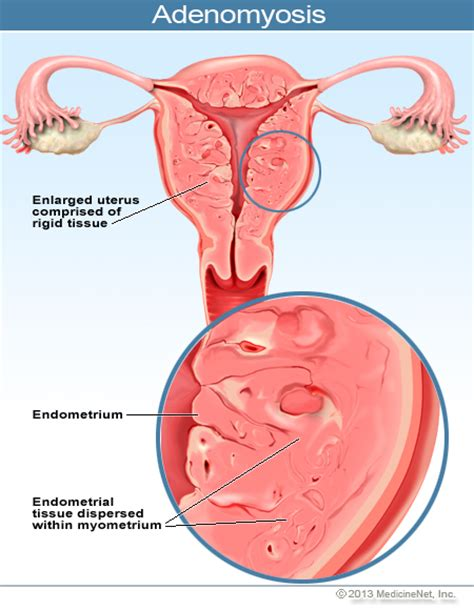 inflammation of the lower section of the uterus what is adenomyosis what is adenomyosis