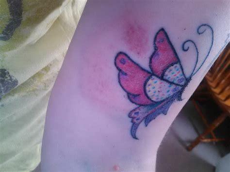 tattoo bruising does look normal bruising 5437615 171 top tattoos ideas