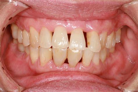 Or Gum How Can I Strengthen My Gums Dental Concerns
