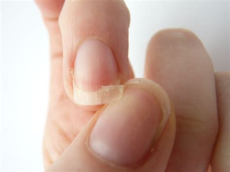 split nail what your nails tell you about your health