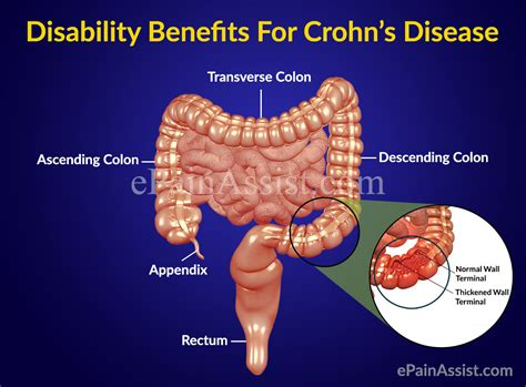 Crohn S Stool by Disability Benefits For Crohn S Disease