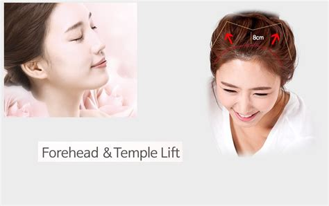 eyebrow lift korea special forehead and temple lift jade plastic surgery