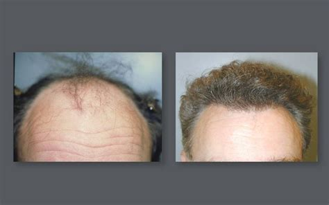 neograft hair transplant nyc fue hair restoration in neograft hair transplant results with automated fue hair