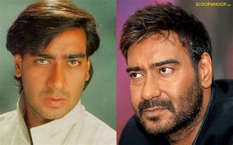 srk hair transplant 14 then and now pics of bollywood stars that ll make every