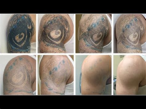 how can i remove permanent tattoo how remove permanent at home