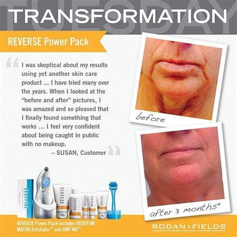 pros of rodan fields 33 best before after images real people real results