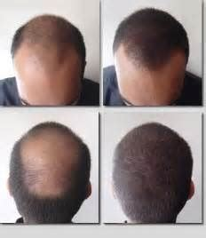 pics of scalp micropigmentation on people with long hair permanent makeup tattoo micropigmentation