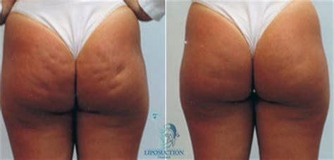 Cost Effective Treatments for Cellulite & Cellulitis in Bangkok