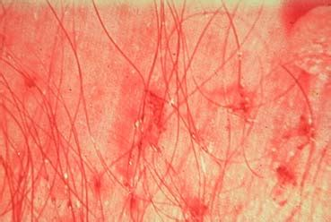pubic hair comb sa dermatology skin disease review for africa by dr
