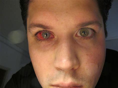 corneal transplant rejection flickr photo sharing