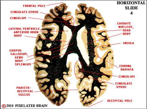 horizontal section of brain pixelated brain neuroanatomy for medical students