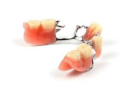 Harga Samsung H8 removable partial denture