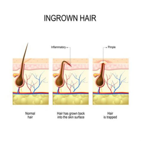 types of ingrown hair ingrown hair on scalp symptoms treatment cure