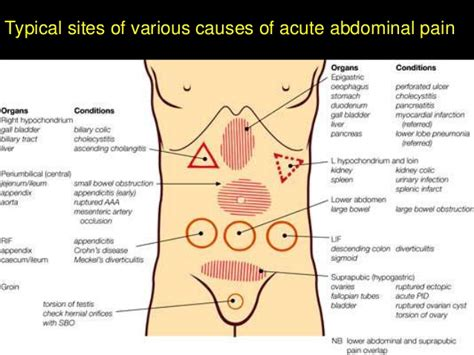 severe abdominal pain after c section causes of stomach ache in adults spicysokol