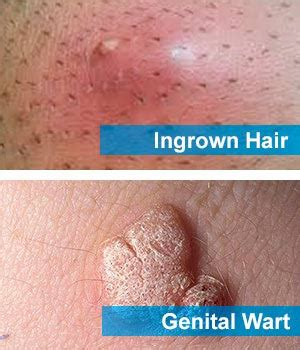 how do you heal ingrown hairs on your chin ingrown hair or std pimple wart staph spider bite